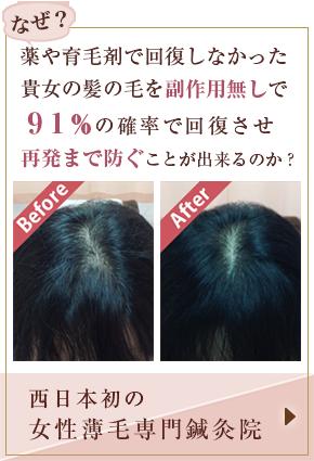 西日本初の女性薄毛専門鍼灸院
